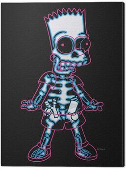Stampa su Tela The Simpsons - X-Ray Bart
