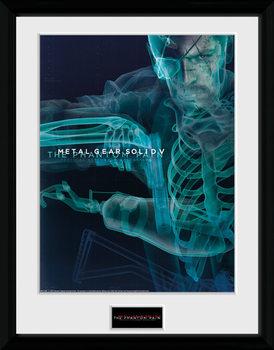 Metal Gear Solid V - X-Ray üveg keretes plakát