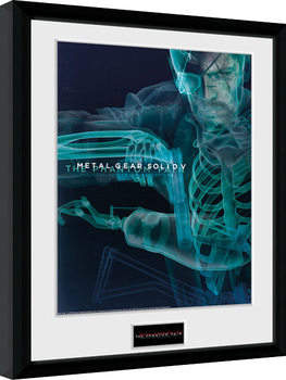 Metal Gear Solid V - X-Ray gerahmte Poster